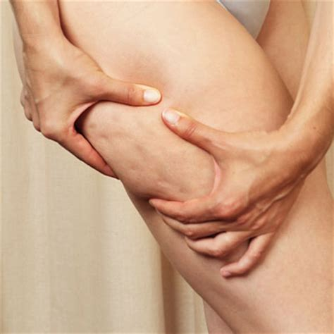 causes of cellulite picture 10