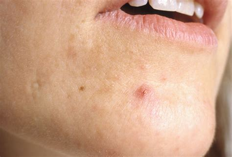 acne breakout symtoms of picture 13