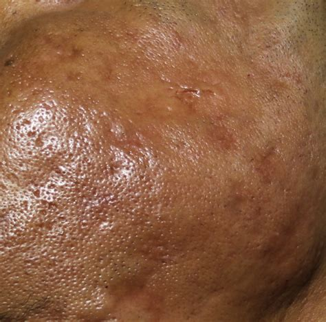 derma roll herpes symptoms picture 9