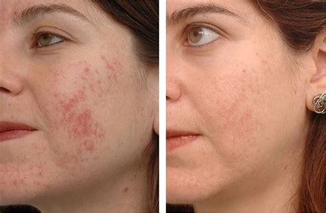 what is strongist face laser treatment in 2014 picture 7