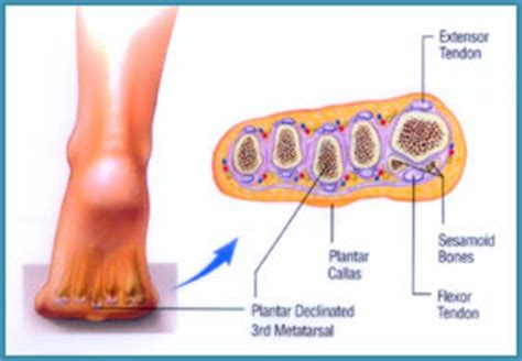 metatarsal pain relief picture 6