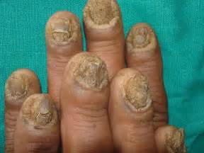 home treatment of toenail fungus picture 3