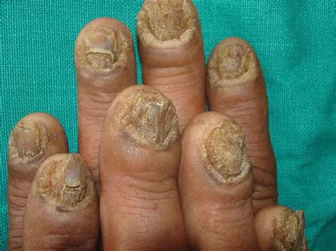 fungus in nail picture 5