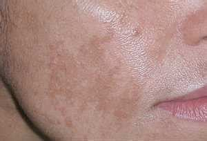 dark patches on skin when drinking picture 1