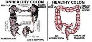How to clean out the colon naturally picture 5