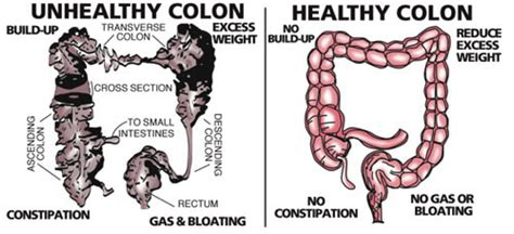 how to clean out the colon naturally picture 6