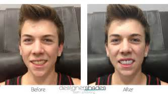 before and after h whitenint picture 9