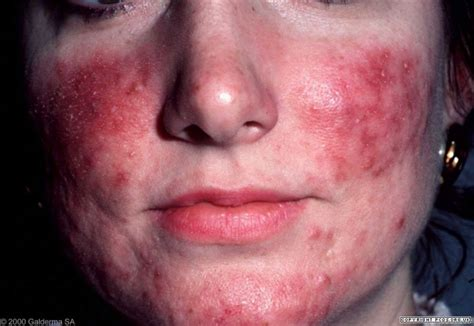 rosacea at 50 picture 1