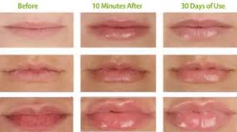 lip plumper reviews 2013 picture 3