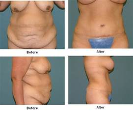 breast reduction after 50 picture 3