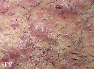 hair removal cream- itchy vagina? picture 2