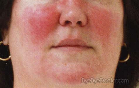 acne roseca picture 19