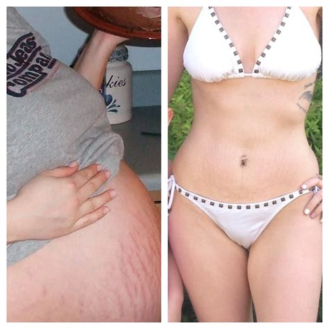 will loose skin from weight loss get better with time picture 2