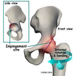 joint impingement syndrome picture 5
