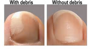 what is keratin debris toenails picture 6