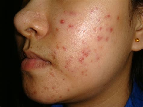 dermatologist acne treatment picture 2