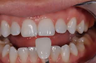 childrens teeth and veneers picture 1