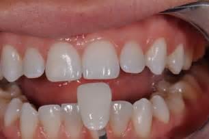 dentist porcelain teeth picture 5