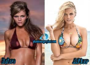 breast enlargement before and after photos picture 5