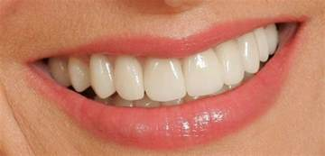dentist porcelin teeth picture 9