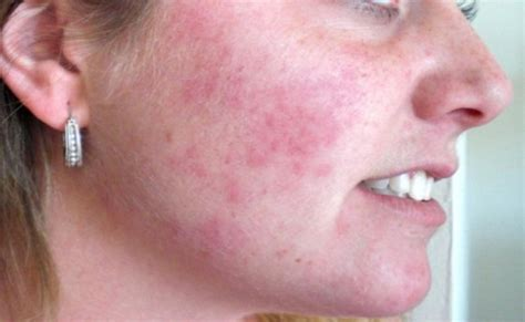 can thyroid cause red scalp picture 10