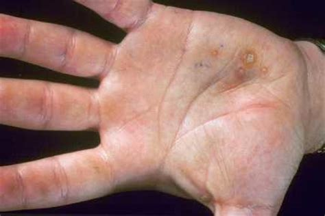 warts in the palm of your hand picture 2