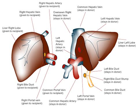 where is the most liver transplants done picture 7