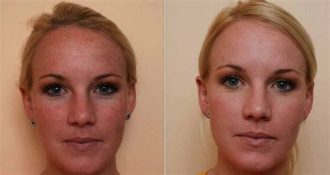 what is strongist face laser treatment in 2014 picture 1
