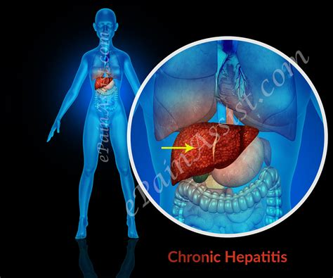 what are the symptoms of liver problems in picture 5