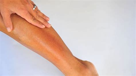 dry skin on legs picture 9