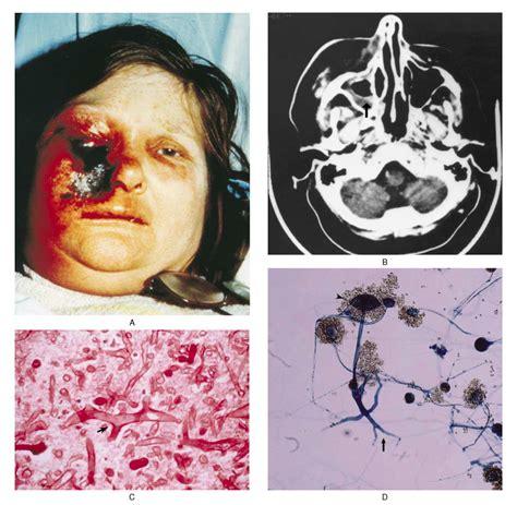 chronic lymphocyt thyroid picture 13