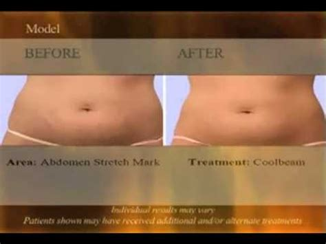 cool beam laser stretch marks reviews picture 1