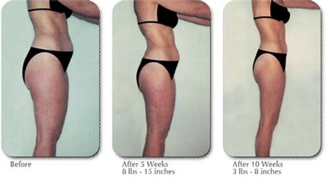 after 1 week lipo results picture 1
