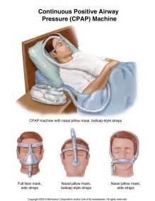 sleep apnea breathing machine picture 17