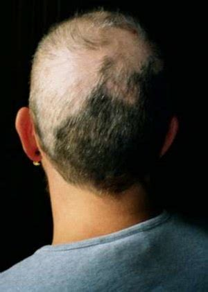 causes of hair pulling picture 14