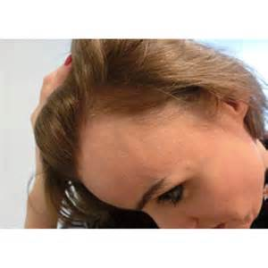 female hair loss medical causes picture 17