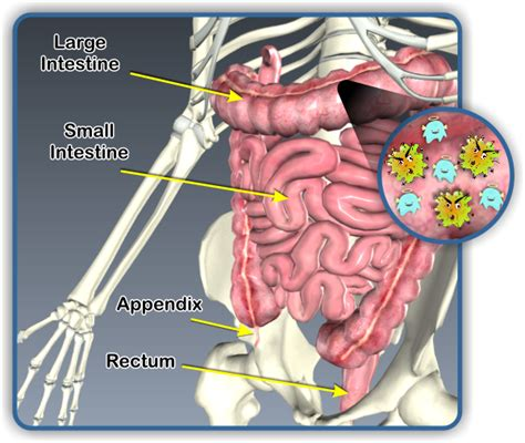 bacteria infection in intestinal tract picture 2