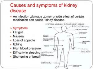 symptoms of liver and kidney problems picture 3