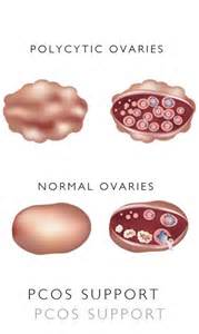 polycystic ovarian syndrome and overactive bladder picture 2