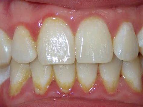 children's teeth pictures picture 1