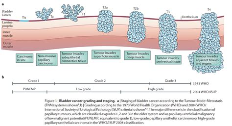 what are symptoms of bladder cancer picture 2
