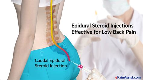 erection problems after epidural steroid block picture 6