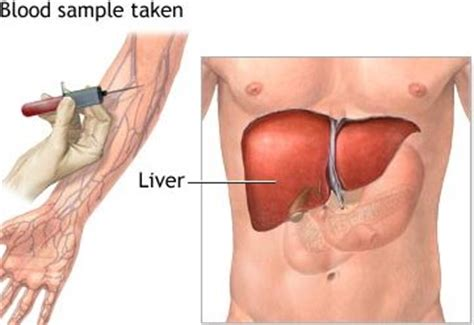 are there prescribed drugs known to increase liver enzymes picture 1