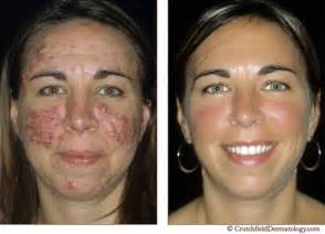 before and after gainer acne picture 11