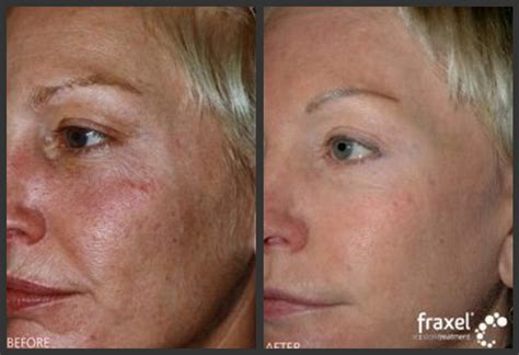 danger of fraxel skin treatment picture 5