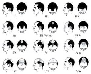 proscar hair growth picture 10