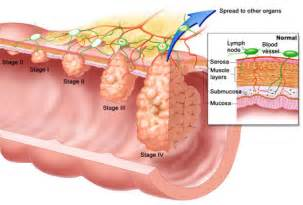 new information on colon cancer picture 5