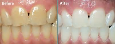 los angeles teeth whitening picture 3
