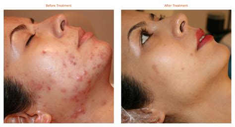 acne help picture 1