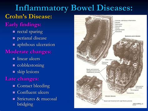 pictures inflammatory bowel disease picture 6